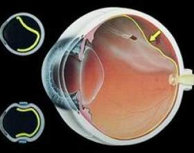 Дистрофія сітківки ока фото
