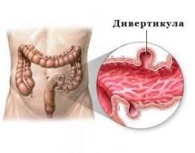 Дивертикулез кишечника (кишки) - симптоми і лікування фото