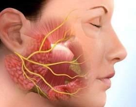 Фарингіт: симптоми і лікування фото