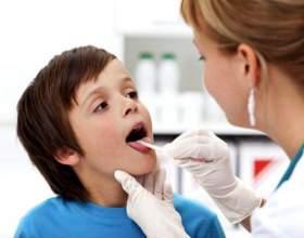 Фарингіт у дітей: симптоми і лікування фото