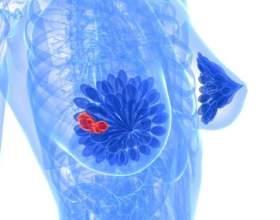 Фіброзно-кістозна мастопатія: симптоми фото