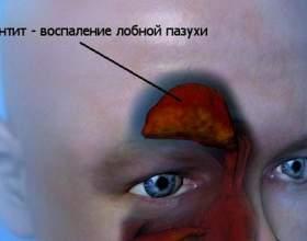 Фронтит: симптоми, лікування фото