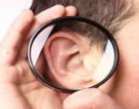 Фурункул у вусі: симптоми, причини, лікування фото