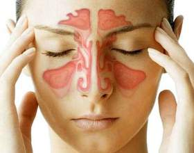 Гайморит: симптоми, лікування в домашніх умовах фото