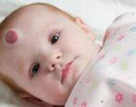 Гемангіома у дитини - причини, симптоми, лікування фото