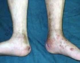 Гематогенний остеомієліт - причини, симптоми, діагностика та лікування фото