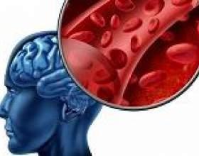 Геморагічний інсульт: причини, симптоми, лікування фото