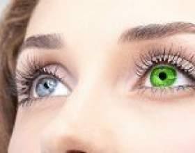Гетерохромія очей: причини, симптоми, лікування фото