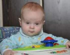 Гідроцефальний синдром у дітей: симптоми і лікування фото