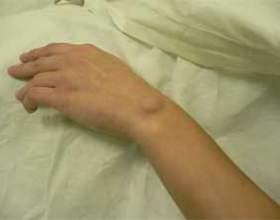 Гігрома зап`ястя, кисті, суглоба - лікування гігром фото