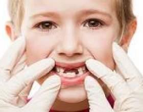 Гінгівіт у дитини: причини, симптоми, лікування фото