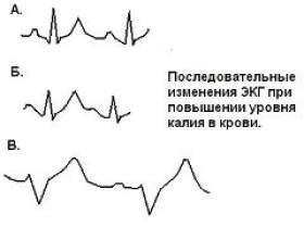 Гіперкаліємія фото