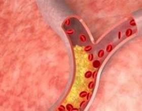 Гіперліпідемія - опис, причини, діагностика, лікування фото