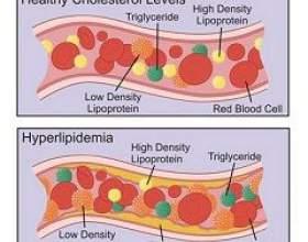 Гіперліпідемія фото