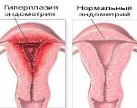 Гіперплазія ендометрію в менопаузі, лікування фото