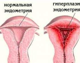 Гіперплазія матки: симптоми, лікування гіперплазії шийки матки фото