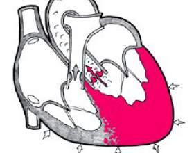 Гіпертрофія лівого шлуночка фото