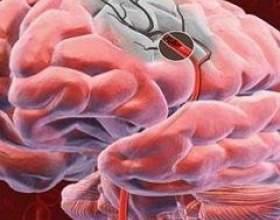 Гіпоксія мозку фото
