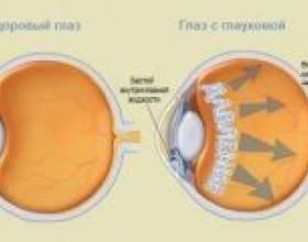 Глаукома - причини, симптоми, діагностика фото