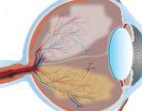 Глаукома - профілактика і лікування глаукоми фото