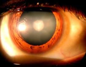 Очний тиск: симптоми і лікування фото