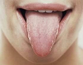 Глоссит - це запалення язика фото