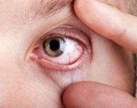 Гранулематоз вегенера - причини, симптоми і лікування фото