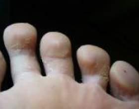 Грибок стопи - народні методи лікування фото