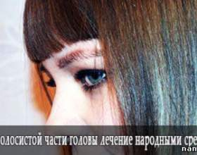 Грибок волосистої частини голови лікування народними засобами фото
