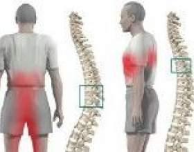 Грудної остеохондроз: симптоми і лікування фото