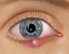 Халязіон: симптоми, лікування і профілактика фото