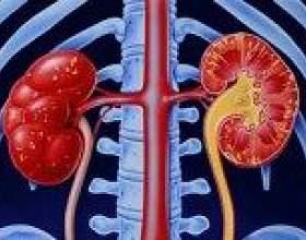Хронічна ниркова недостатність, симптоми, причини, лікування фото