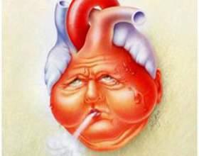 Хронічна серцева недостатність фото