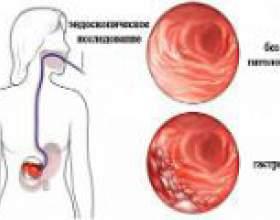 Хронічний атрофічний гастрит: причини, симптоми, лікування фото