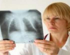 Хронічне запалення легенів: симптоми, лікування фото