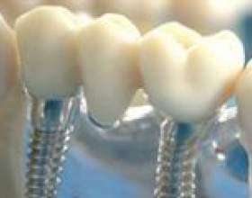 Імплантація зубів: головні факти фото