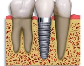 Імплантація зубів: протипоказання і можливі ускладнення фото