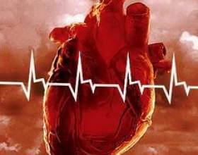 Інфаркт міокарда фото