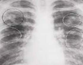 Інфільтративний туберкульоз легень: симптоми, фази, лікування фото