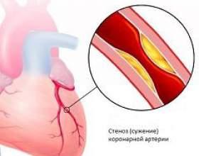 Ішемічна хвороба серця фото
