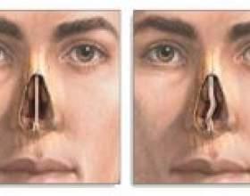 Викривлення носової перегородки: причини виникнення та лікування фото