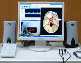 Використання триплексного сканування судин шиї та головного мозку фото