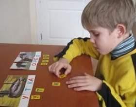 Через що розвивається епілепсія у дитини? фото