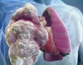 Емфізема легенів - симптоми, лікування фото