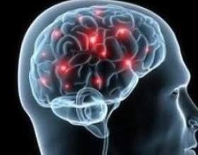 Енцефаломієліт гострий і розсіяний - причини, симптоми, і лікування фото