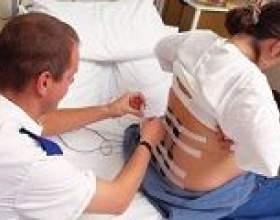 Епідуральна анестезія при пологах і її наслідки фото