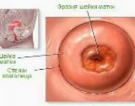 Ерозії шийки матки у родили - причини і лікування фото
