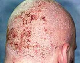 Як боротися з себорейний дерматит? Лікування медичними та народними засобами фото