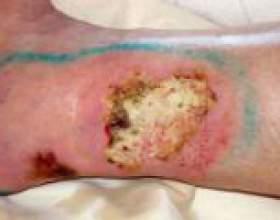 Як лікувати трофічні виразки на ногах? фото