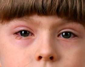 Як правильно лікувати кон`юнктивіт у дітей фото